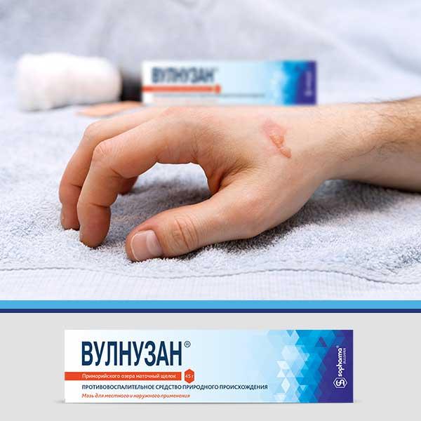 Вулнузан лечение ран, трещин сосков груди, варикозных язв